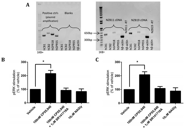 mRNA expression and pERK stimulation in two endogenously GPR18-expressing GBM cell lines.