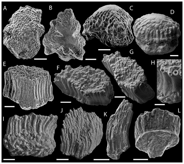SEM micrographs of Solinalepis levis gen. et sp. nov. scales from the Upper Ordovician Harding Sandstone of Colorado, USA.