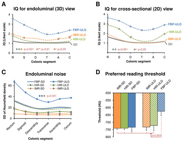 Image quality (IQ) ratings for endoluminal (A) and cross-sectional (B) view for each colonic segment (1 = excellent, 5 = unevaluable) compared to the standard dose (SD) acquisitions (grey), which are represented as average from FBP-SD, HIR-SD, IMR-SD, show superiority of both iterative reconstruction algorithms compared to FPB in ultralow-dose CT colonography. Endoluminal noise measured as standard deviation of Hounsfield density in colonic lumen is suppressed with IMR-ULD, IMR-SD, and HIR-SD compared to FBP-SD (C). Statistical difference per segment is marked by circles. The preferred endoluminal rendering threshold, i.e., Hounsfield density that discriminates voxels representing intraluminal air from the colonic wall was significantly decreased in FBP-ULD indicating the need to suppress excessive noise (D).