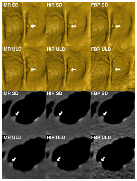 Comparison of image quality of virtual endoscopic view and thin 0.9 mm sections in a colonic window (900/100 HU) of a small (8.2 mm) sessile polyp (arrow) in cecum shows markedly reduced image quality in ultralow-dose acquisition reconstructed with FBP.