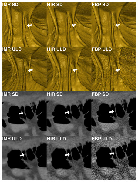 Comparison of image quality of a small (7.9 mm) flat lesion in the ascending colon shown in virtual endoscopic view and thin 0.9 mm sections in a colonic window (900/100 HU) demonstrates markedly reduced image quality in FBP-ULD.