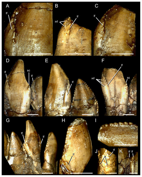 Dentary teeth of Segnosaurus galbinensis MPC-D 100/80.