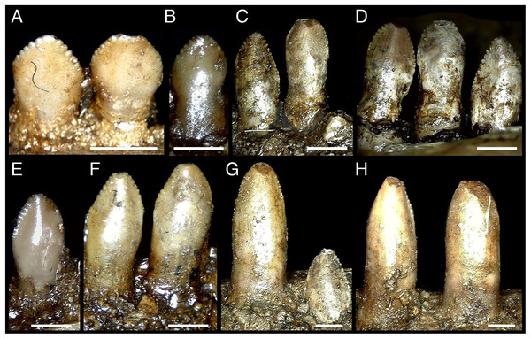 Dentary teeth of Erlikosaurus andrewsi (MPC-D 100/111).