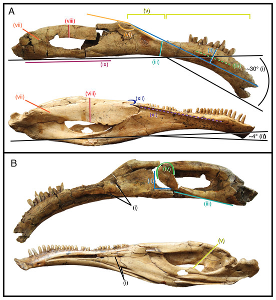 Differentially diagnostic features of Segnosaurus galbinensis MPC-D 100/80 and Erlikosaurus andrewsi.