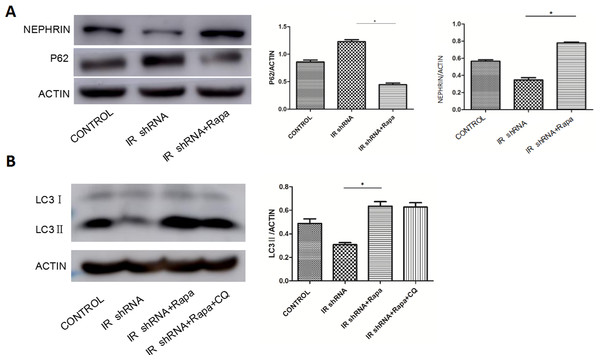 Rapamycin (RAPA) activated autophagy in IR-knockdown podocytes and increased the expression of Nephrin.
