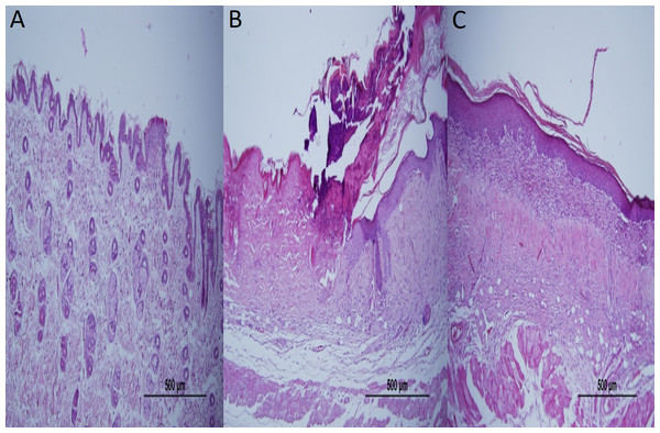 Representative H&E staining of skin tissues in groups after 1-week treatment.