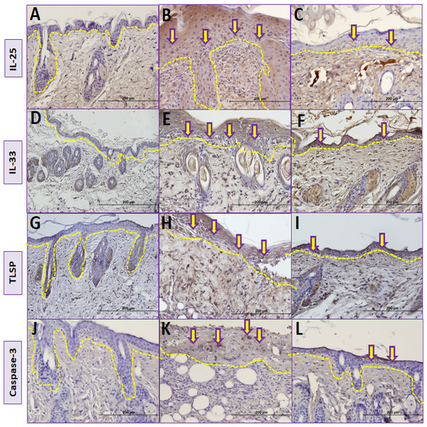 Comparison ofimmunohistochemical analysis between groups.