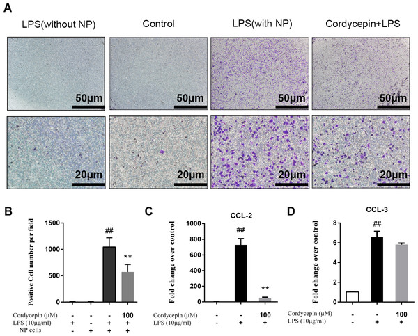 Cordycepin inhibits LPS-induced CCL2 expression and macrophage migration in NP cells.