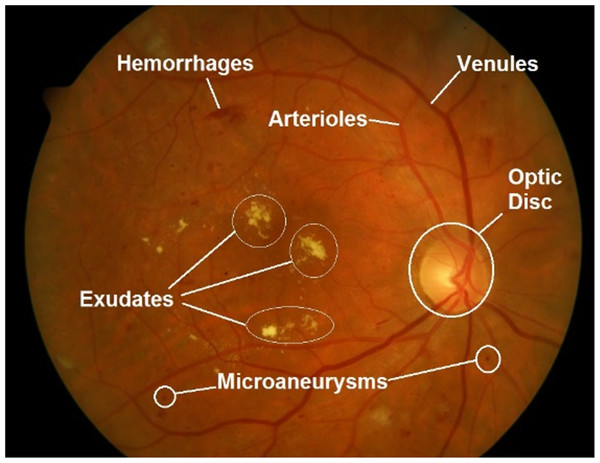 Important features in retinal fundus image.