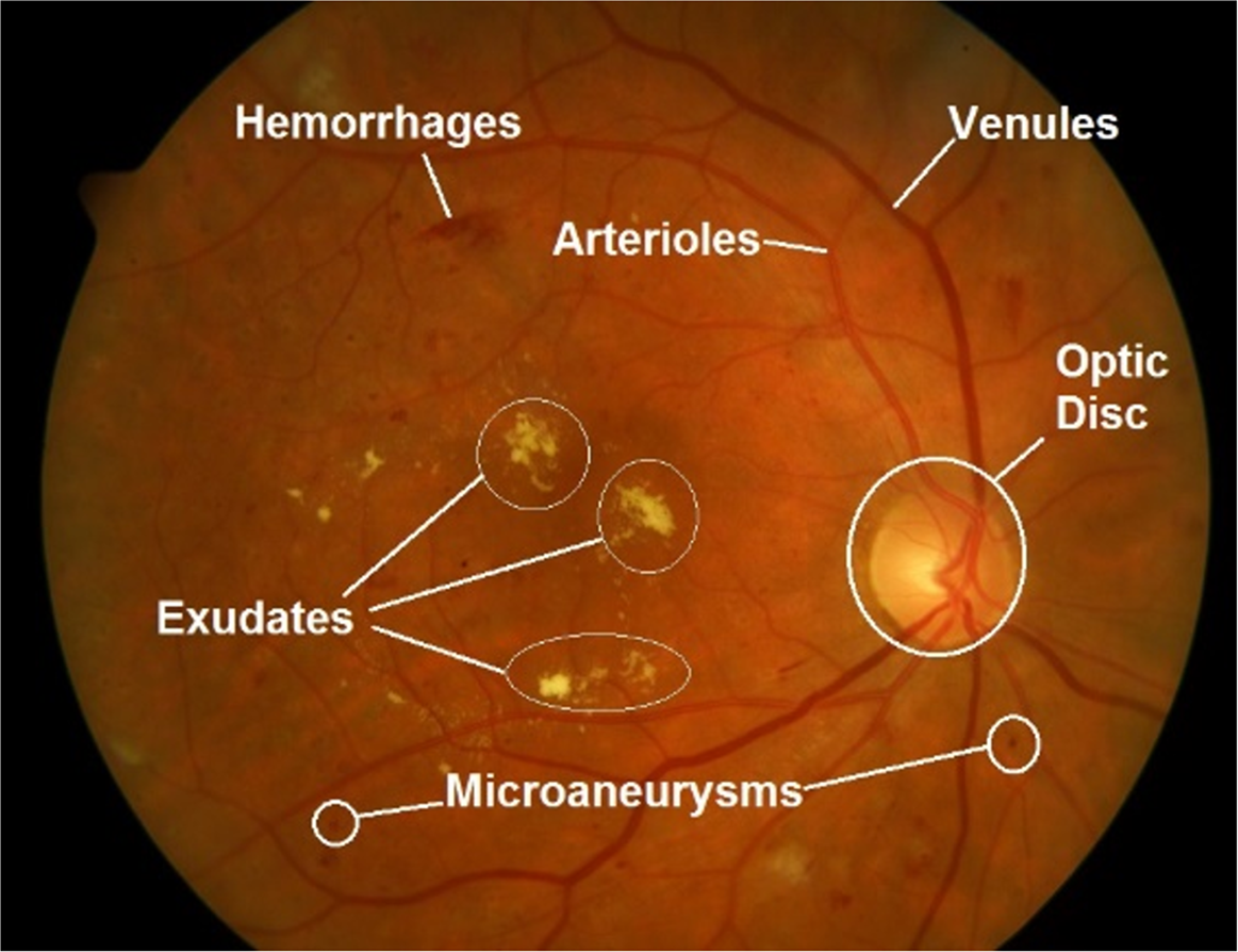 localization and segmentation of optic disc in retinal images using circular hough transform and
