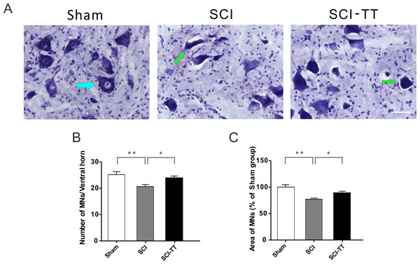Treadmill training alleviates secondary injury of the lumbar spinal motor neurons after SCI.