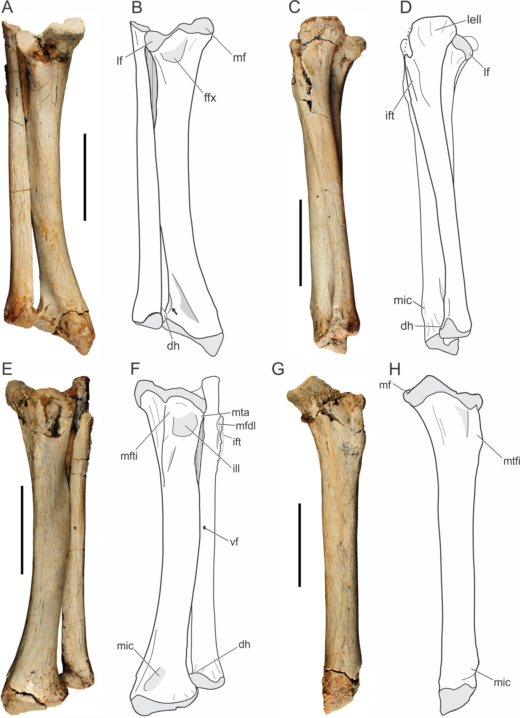Ungewöhnlich Beckenlymphknoten Anatomie Fotos - Menschliche Anatomie ...