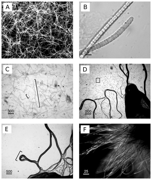 Images of cyanobacterium filament morphologies on agar and liquid cultures.