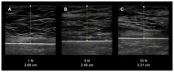 Force-feedback augmented sonography of a calibration ultrasound phantom using manual image capture methods.