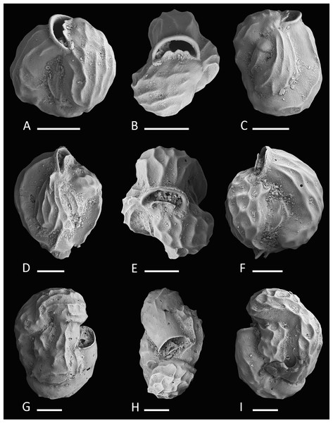 Holotype and paratypes of Miliolinella undina sp. nov.