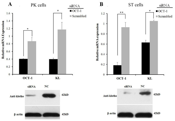 OCT-1 up-regulated KL expression by RNAi.