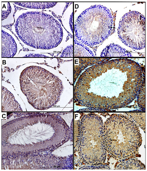 Immunoexpression of p53 and TIGAR in paraffin-embedded ipsilateral testicular tissue.