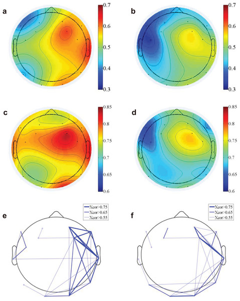 EEG functional connectivity.