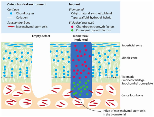 Illustration of cartilage regeneration by implantation of biomaterials after bone marrow stimulation.