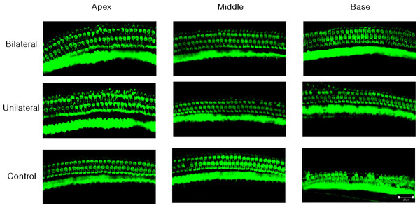 Representative confocal images of hair cells at three different locations (apex, middle, and base) in each experimental group.