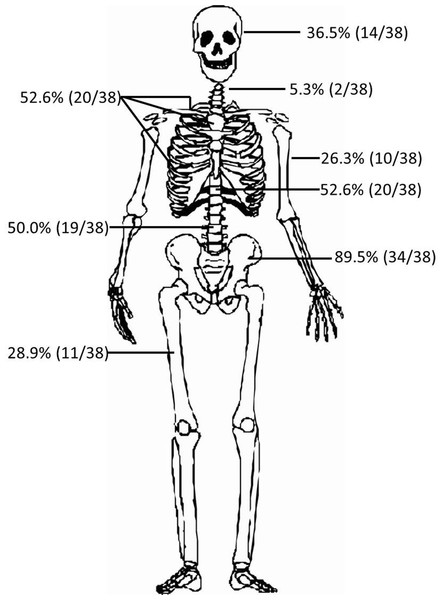 Distribution of bone lesions in POEMS syndrome.