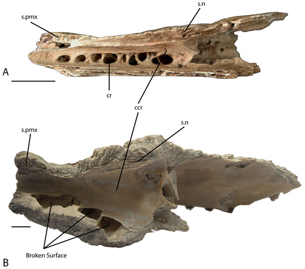 Right maxilla.