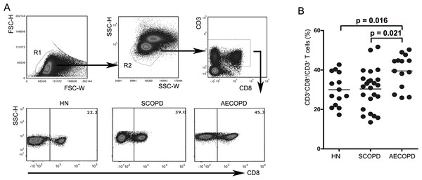 Acute exacerbations of COPD are accompanied by elevation of circulating CD8+ T cells.