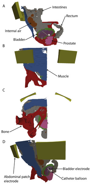 3-D model with electrodes and different tissues.