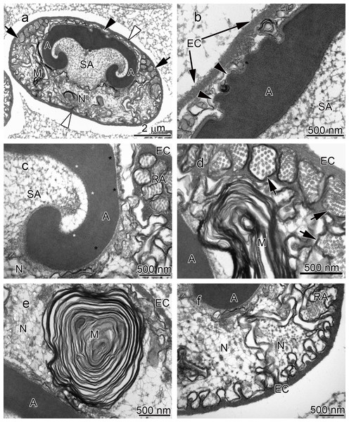 Transmission electron micrographs of Cambarus robustus spermatozoon.