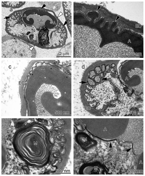 Transmission electron micrographs of Orconectes propinquus spermatozoon.