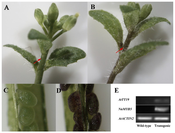 Functional analysis of NnMYB5 in transgenic plants.