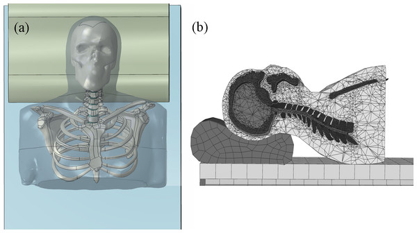 Finite element model of the head-neck complex with pillow: (A) model geometry in frontal view; (B) side and cross-section view of the head-neck complex resting at H3 condition.