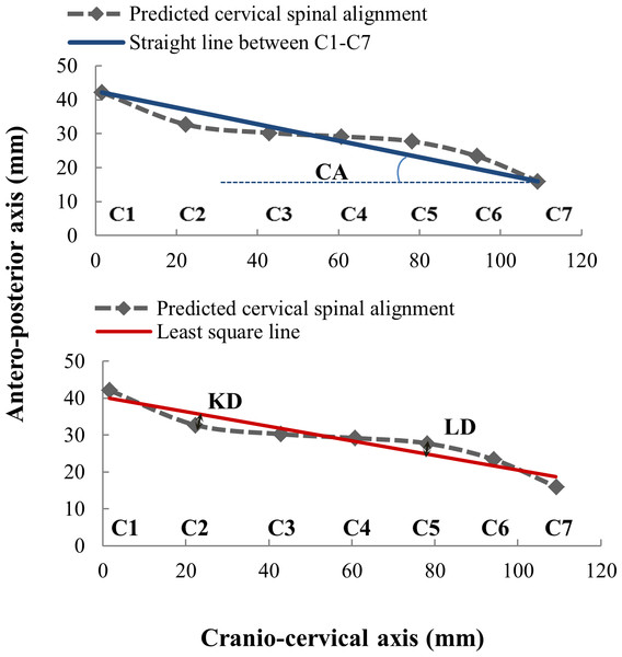 Illustration of the cervical spine alignment parameters: CA, cervical angle; LD, lordosis distance; KD, kyphosis distance.