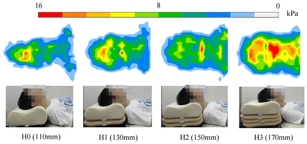 Cranio-cervical pressure distribution under the four pillow height conditions from one typical subject.