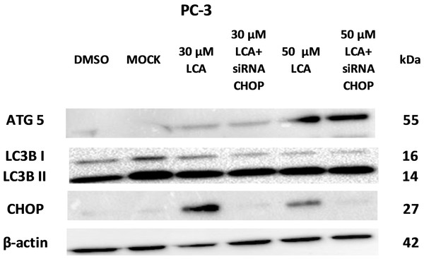 CHOP silencing had no affect on LCA-mediated induction of the autophagic markers LC3B conversion or ATG5 expression.