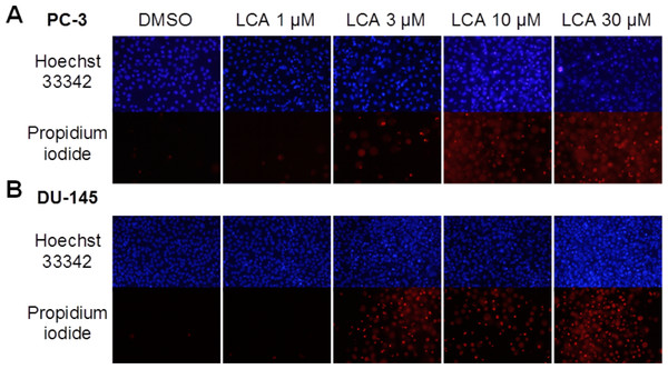 Lithocholic acid (LCA) induces apoptotic and necrotic death of PC-3 and DU-145 prostate cancer cells.