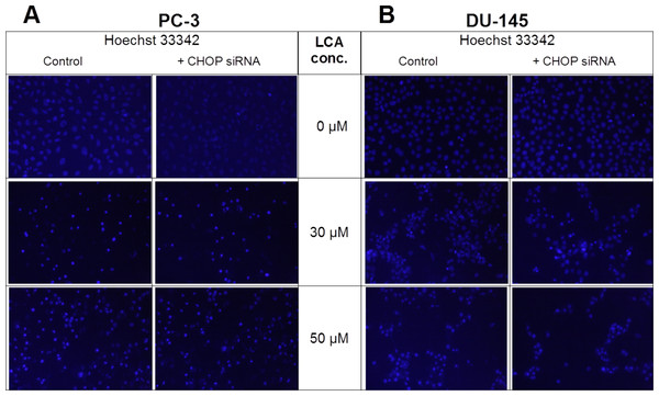 CHOP gene silencing does not affect lithocholic acid-(LCA)-induced apoptosis in PC-3 and DU-145 prostate cancer cells.