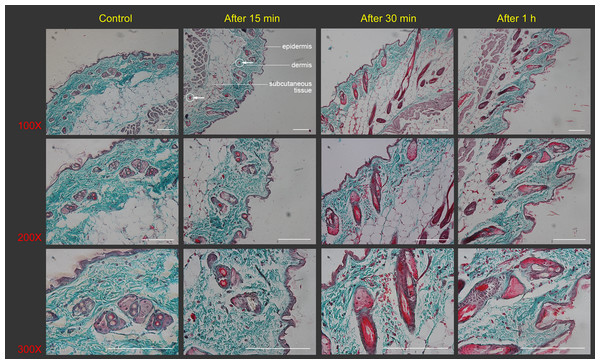 Histological images of mouse skin sections prior to and after Gua Sha treatment.