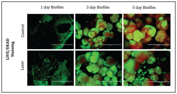 Fluorescence Microscopy showing representative images of bacteria in biofilms after 1, 3 and 5 days of biofilm.
