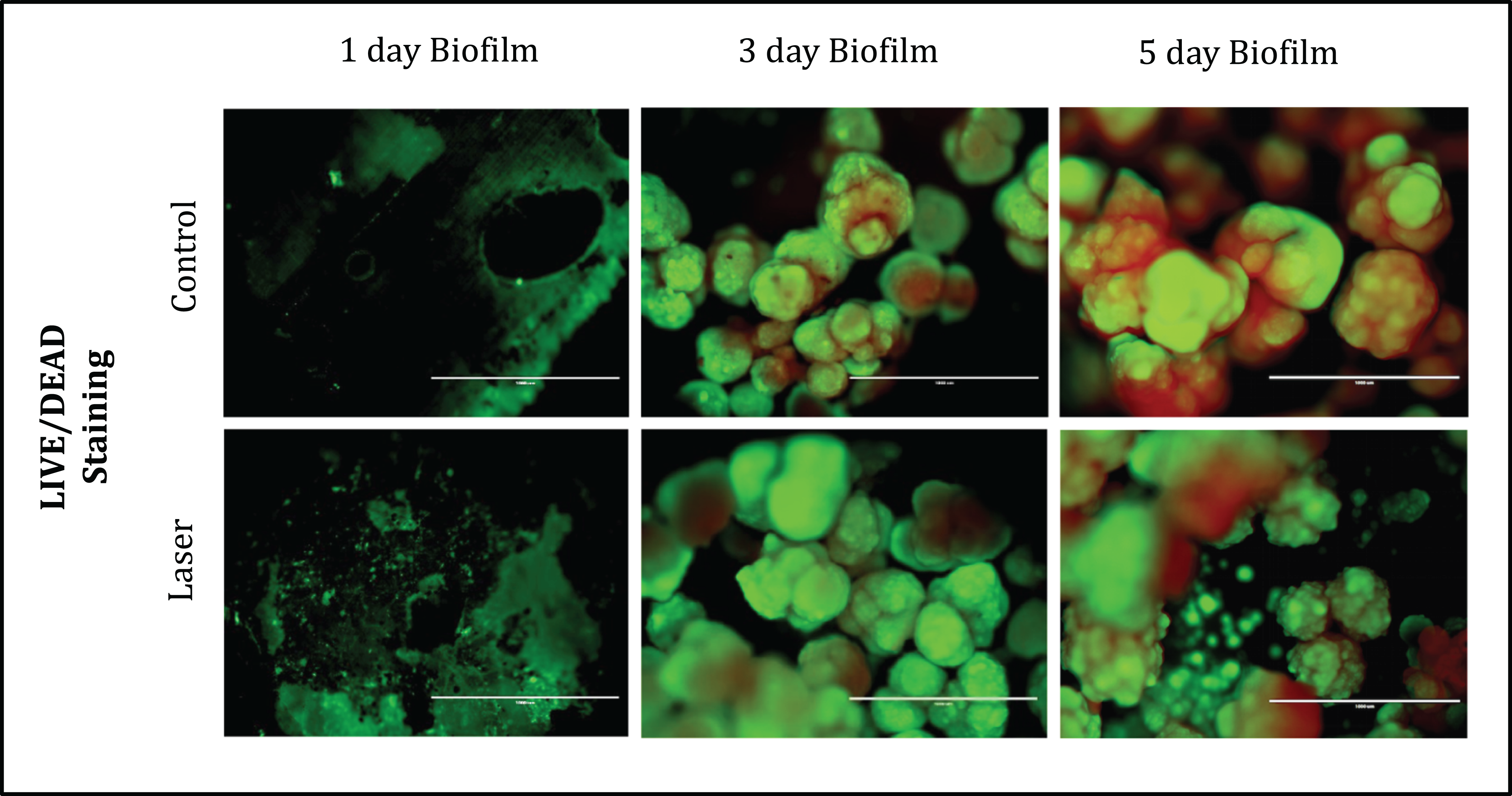 Effects of CO2 laser irradiation on matrix-rich biofilm development