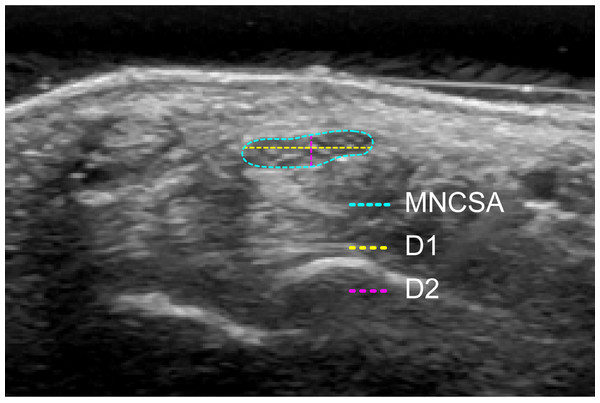 Quantification of the median nerve cross-sectional area (MNCSA), diameter in radial-ulnar direction (D1) and diameter in dorsal-palmar direction (D2).