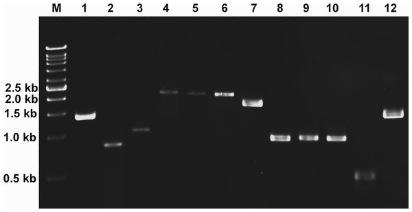 Gene expression analysis of candidate genes using reverse transcription PCR (RT-PCR).