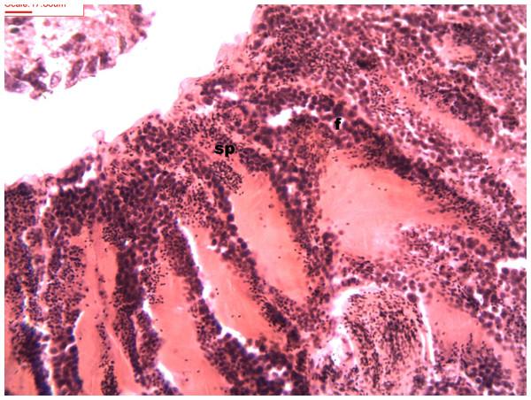 Stages of spermatogenesis.