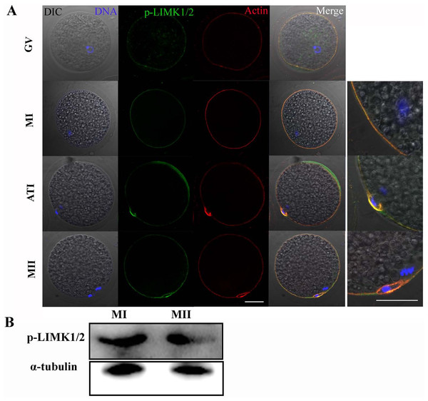 p-LIMK-1/2 expression in porcine oocytes.