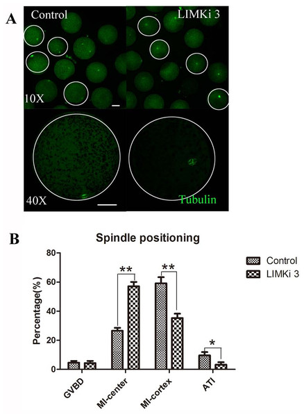 LIMKi 3 treatment causes abnormity of spindle position in porcine oocyte.