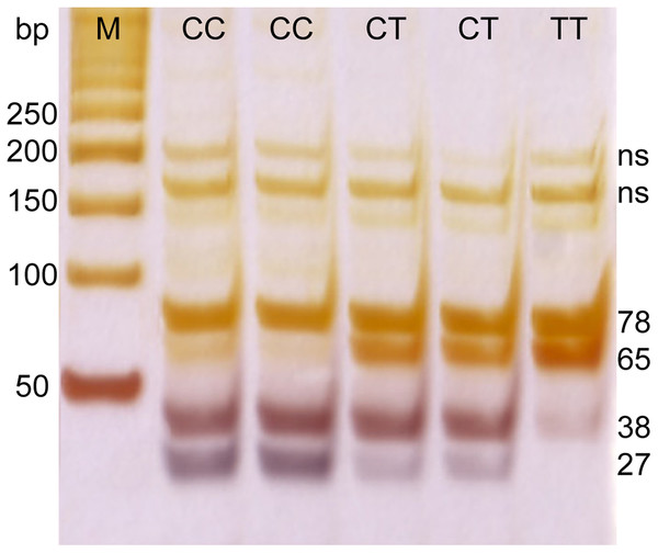 PCR electrophoresis results for rs12979860 genotyping.