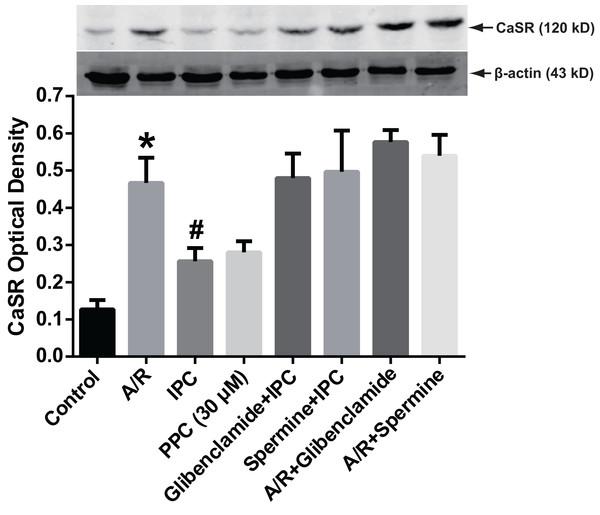 CaSR protein expression.