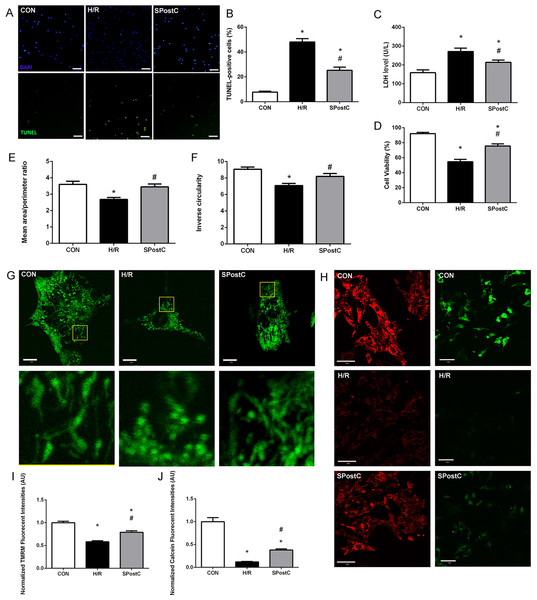 SPostC decreased LDH level, cell death and cell viability, increased mitochondrial interconnectivity, elongation and membrane potential but decreased the opening sensitivity of mPTP on post-hypoxic primary cultured neonatal rat cardiomyocytes (NCMs).