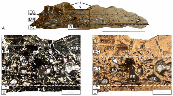 Detailed microanatomy of the skull bones of Metoposaurus krasiejowensis (UOPB 01029) from the Late Triassic of Poland, based on the frontal.