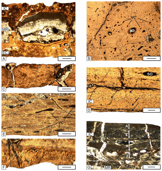 The details of the histology of the middle region and internal cortex of the skull (UOPB 01029) bones of Metoposaurus krasiejowensis from the Late Triassic of Poland.